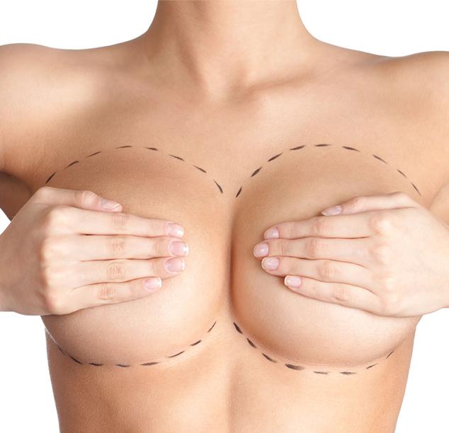 Αποκατάσταση μαστού