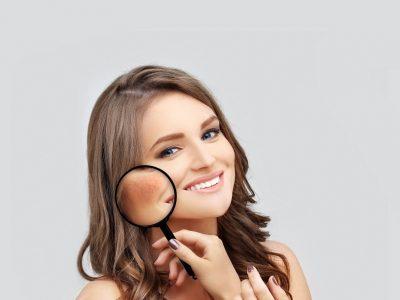 Λαμπερό δέρμα: 5 τρόποι για να σβήσεις κηλίδες & πανάδες