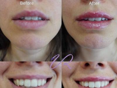 Step-by-step Φ technique: Η χρυσή τομή στα πλούσια χείλη