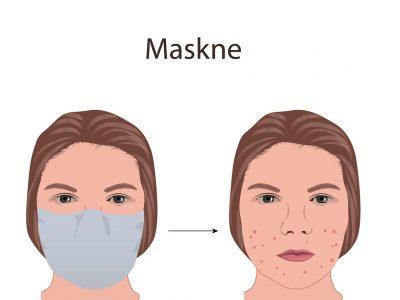 Maskne: Τα top συστατικά & οι ιατρικές θεραπείες για να νικήσουμε την ακμή από χρήση μάσκας!